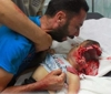 Palestinian child after Israel attack